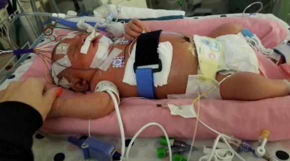 Bayi Kena Virus